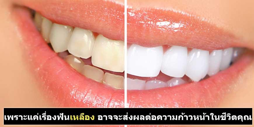 ชุดฟอกฟันขาว ฟอกสีฟัน ด้วยแสงเลเซอร์ | Sponsors