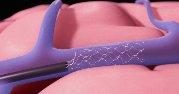 การใส่ขดลวดเข้าไปในสมองโดยไม่ต้องมีการผ่าตัด