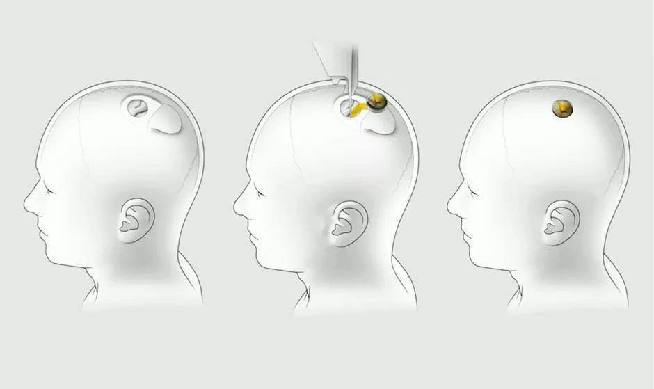การปลูกถ่ายไปยังสมองมนุษย์ | cr : cnet.com